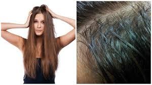 No te lo pierdas! Prepara tu propio Champú en seco y despidete del cabello  graso   ▷ Miami News 24